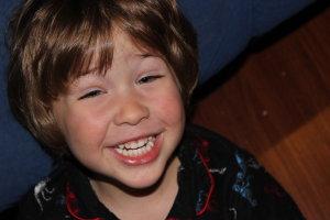 kieran_teeth.jpg by eccles